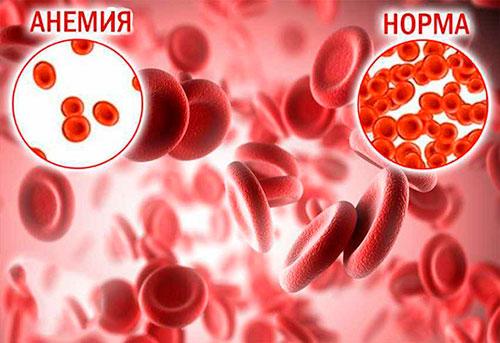 Низкий гемоглобин: как его повысить?