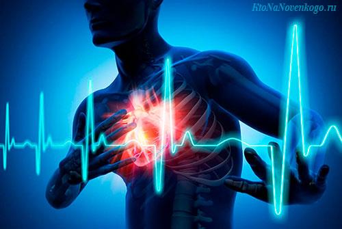 Аритмия сердца (синусовая  и мерцательная)  — что это такое