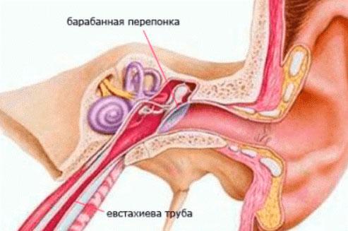 Евстахиит - как выглядит воспаление слуховой трубки