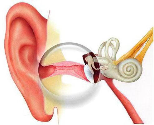 Как выглядит сильное воспаление ушного канала