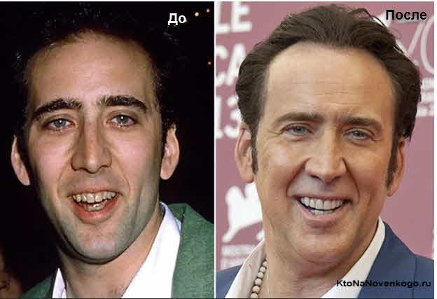 Виниры до и после